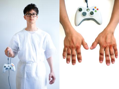 game arthritis hyperthrophy